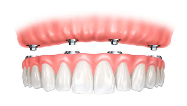 dentures2